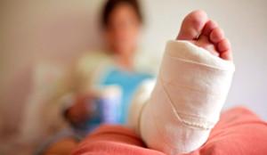 broken-leg_342x198_108880219